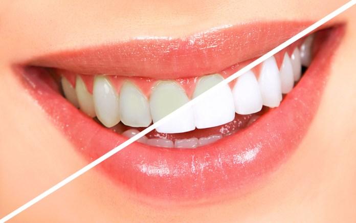 Crystal White Smile